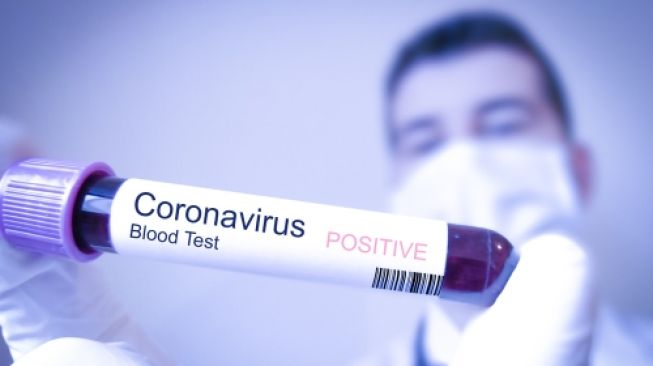 Puluhan WNI di AS Positif Virus Corona